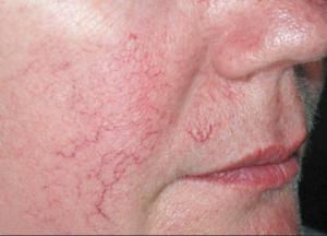 Капиллярная кожа лица