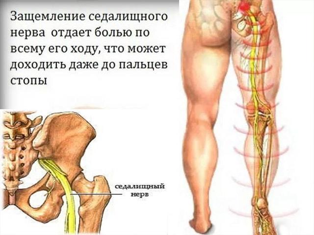 Воспаление седалищного нерва (неврит) симптомы и лечение