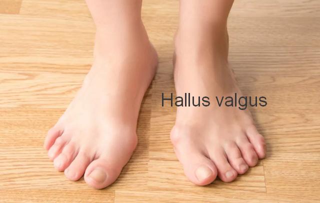 Что такое шишки на ногах. hallux valgus