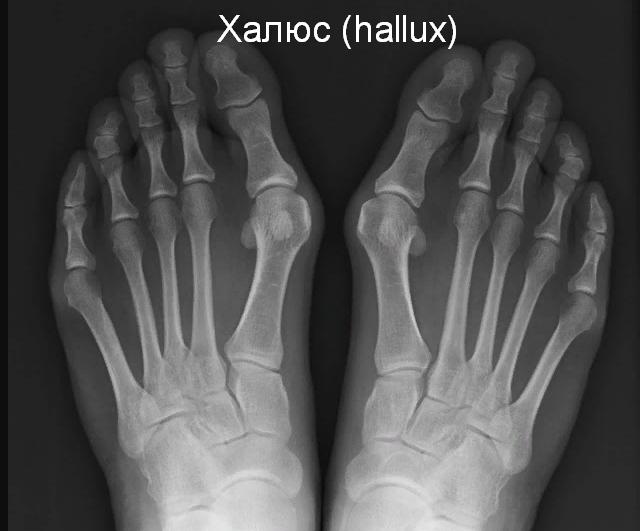Что такое шишки на ногах