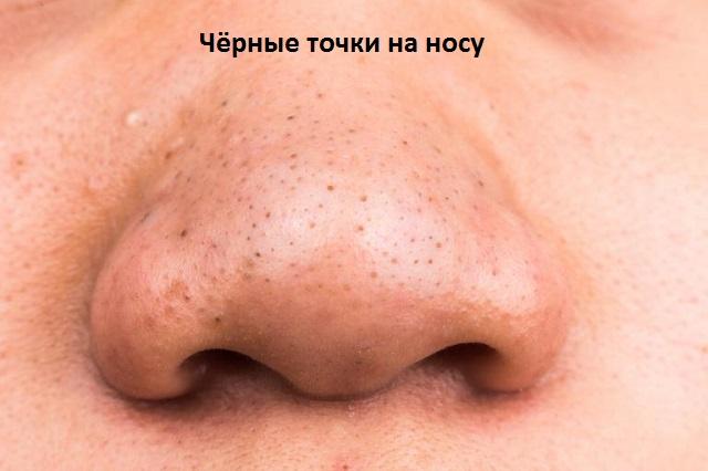 Как удалить черные точки на лице