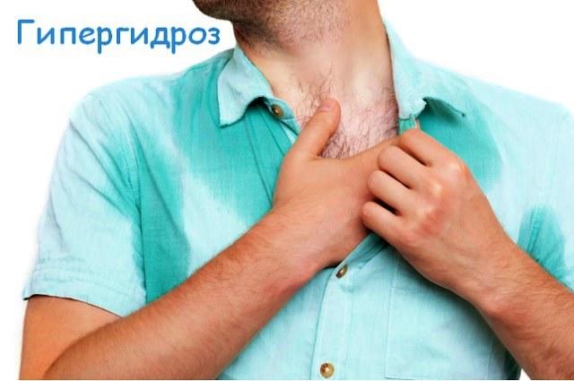 Гипергидроз, характеристика заболевания и способы лечения
